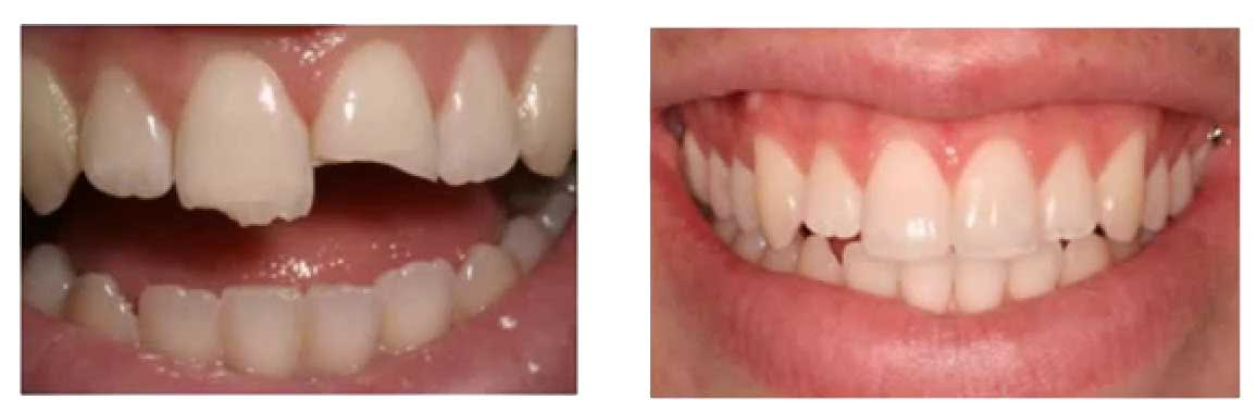 Cosmetic Dentistry Woodvale
